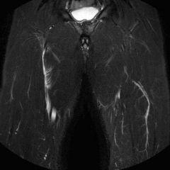 RM lesione muscolare