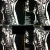 Ernia espulsa cervicale: Sag FSE T2