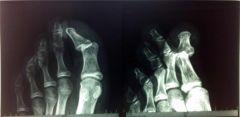La buona, vecchia, deliziosa radiologia tradizionale