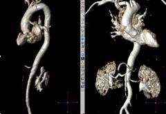 Angio-RM 3D Aorta
