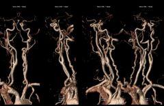 Angio-RM 3D TSA