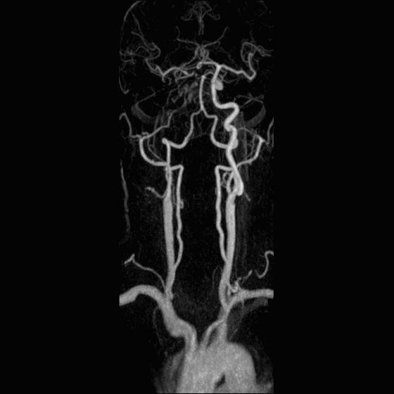 RM tronchi sovra aortici trombosi ce-mra