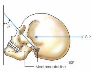 59666197def87_skullpictures.PNG.ad59df86b22cf24a7409459e16754565.PNG