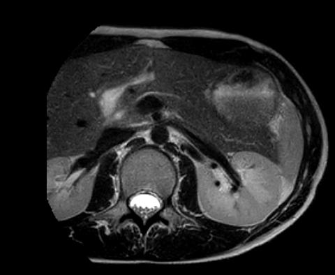 Pancreas Zoom T2.png